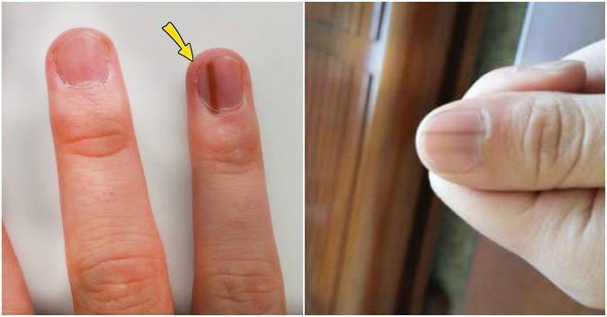 Trông thì rất bình thường nhưng đây lại là những dấu hiệu mà cơ thể đang nhắc bạn cần đi khám ngay - Ảnh 2.