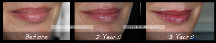 Đắn đo trước hiệu quả chống già của retinol? Minh chứng người phụ nữ sau 3 năm kiên trì với làn da như photoshop sẽ khiến bạn thay đổi - Ảnh 5.