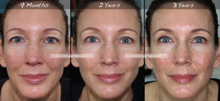Đắn đo trước hiệu quả chống già của retinol? Minh chứng người phụ nữ sau 3 năm kiên trì với làn da như photoshop sẽ khiến bạn thay đổi - Ảnh 2.