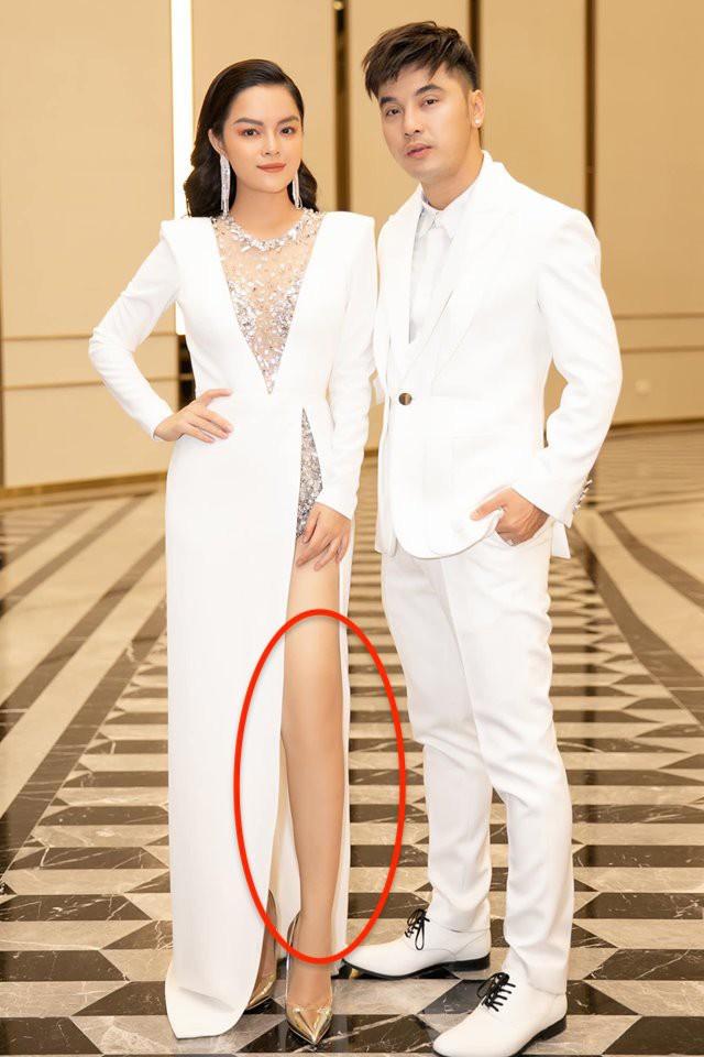 Di chứng của Photoshop tiếp tục gọi tên Phạm Quỳnh Anh:  Đôi chân cong vẹo bất thường, nuột nà như mất đầu gối  - Ảnh 1.