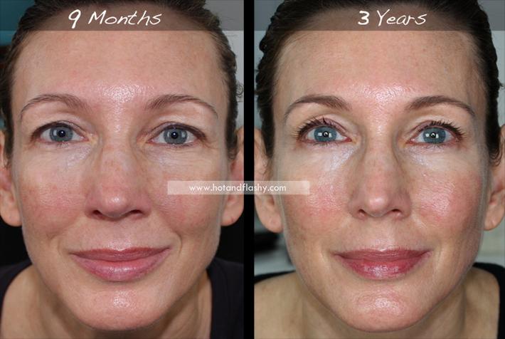 Đắn đo trước hiệu quả chống già của retinol? Minh chứng người phụ nữ sau 3 năm kiên trì với làn da như photoshop sẽ khiến bạn thay đổi - Ảnh 6.