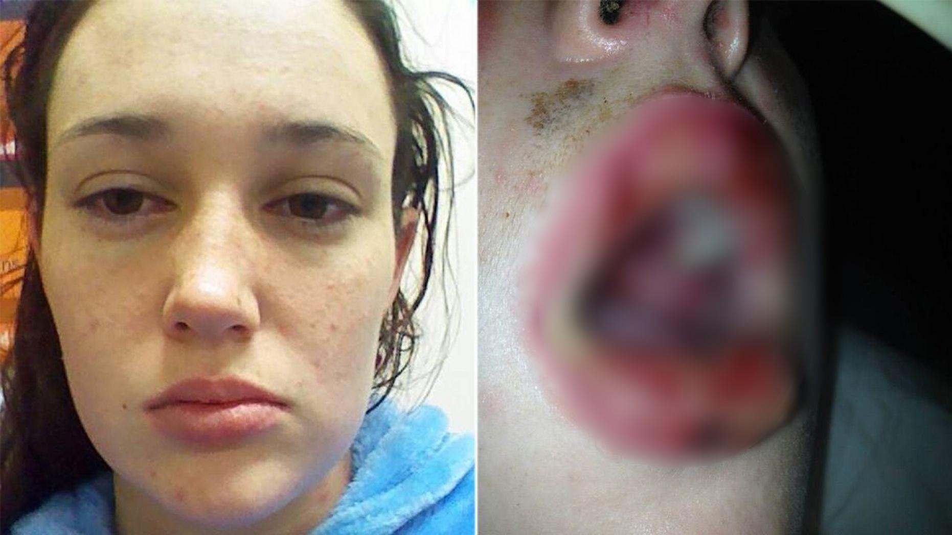 Bị phản ứng thuốc đến nỗi bác sĩ nói sẽ bị vô sinh nhưng điều không ngờ đã xảy ra với cô gái sau đó - Ảnh 1.
