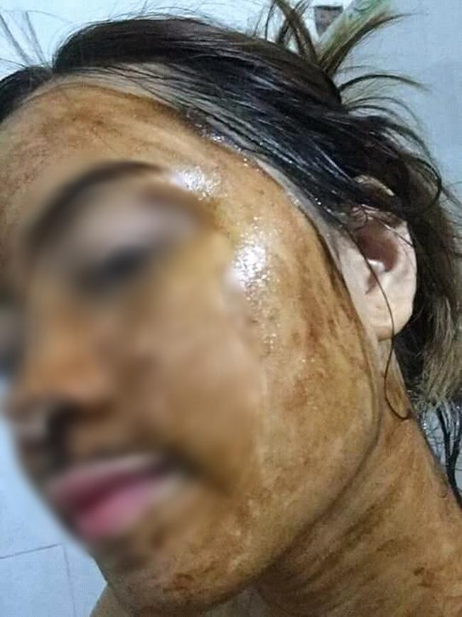 Bức ảnh cô gái tắm trắng da bằng cách bôi thuốc rồi quấn bao nilon như xác ướp khiến hội chị em giật mình - Ảnh 3.