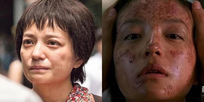 Người đẹp Trung Quốc gây sốc với tạo hình răng hô, mụn đầy mặt
