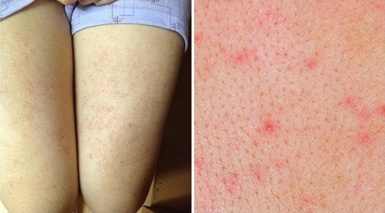 Cẩn thận với những căn bệnh về da thường gặp trong mùa hè, đặc biệt là bệnh số 3 - Ảnh 3.