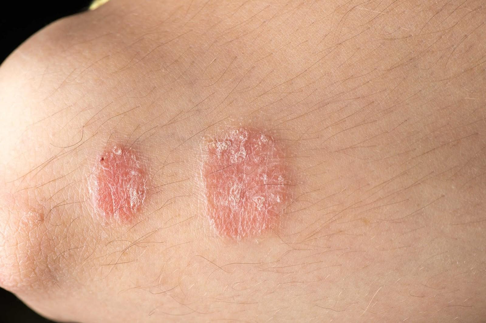 Cẩn thận với những căn bệnh về da thường gặp trong mùa hè, đặc biệt là bệnh số 3 - Ảnh 1.