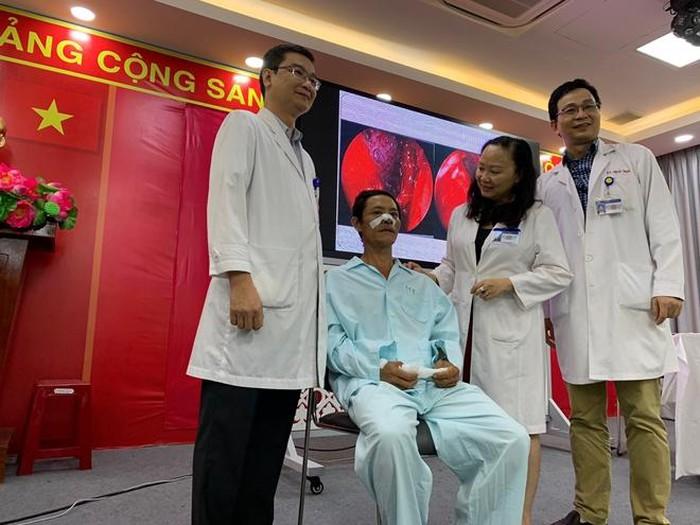 Khúc đũa 7 cm bị 'bỏ quên' trong hốc mũi bệnh nhân suốt 4 năm