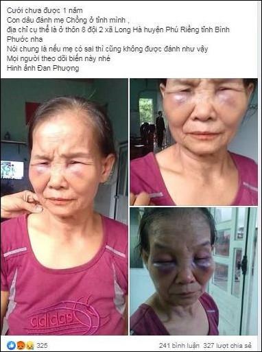 Phẫn nộ con dâu mới sinh 3 tháng đánh mẹ chồng thâm tím mặt rồi khóc lóc xin đừng nói với ai - Ảnh 1.