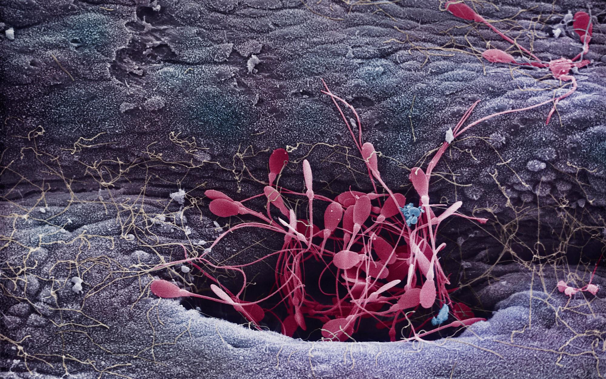 Chuyện chưa kể về cuộc đua của tinh trùng: Nhẩn nha, thoải mái, khốc liệt và không phải càng nhiều càng tốt - Ảnh 3.