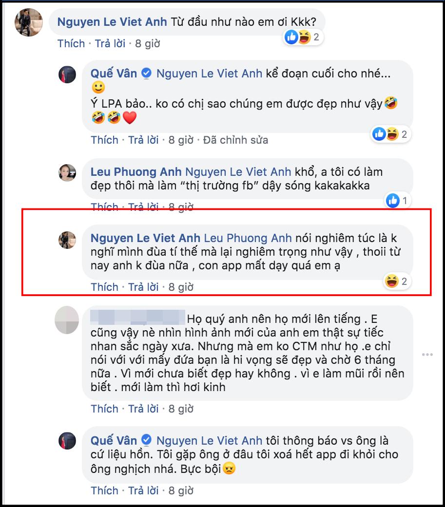 Cuối cùng Việt Anh cũng chịu lên tiếng giải thích lý do thẩm mỹ khiến gương mặt khác hẳn, phủ nhận chuyện hạ gò má, mở hốc mắt - Ảnh 1.