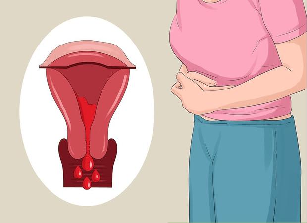 Cô gái mất hơn 10 năm mới có thể chẩn đoán ra căn bệnh nguy hiểm liên quan trực tiếp tới khả năng sinh sản - Ảnh 2.