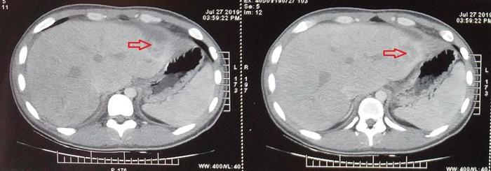 Kinh hoàng bệnh nhân bị tăm xỉa răng đâm xuyên dạ dày, gan và màng tim