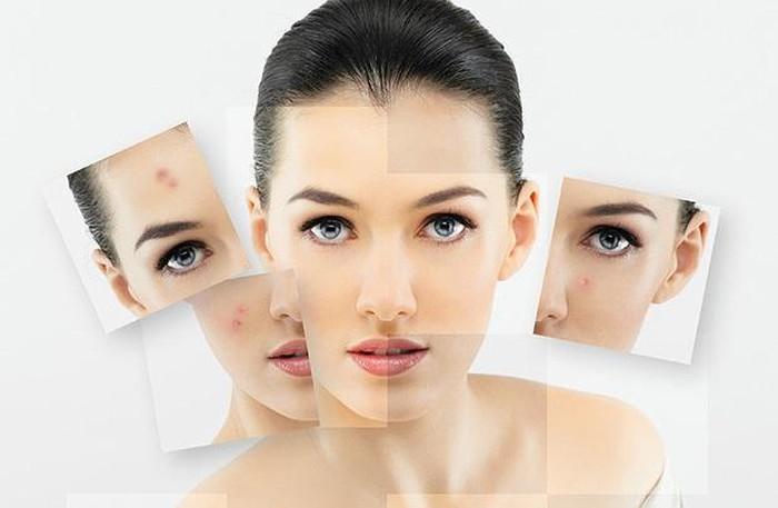 Cảnh báo bệnh da liễu nguy hiểm từ một bệnh nhân dùng bột rửa mặt không rõ nguồn gốc