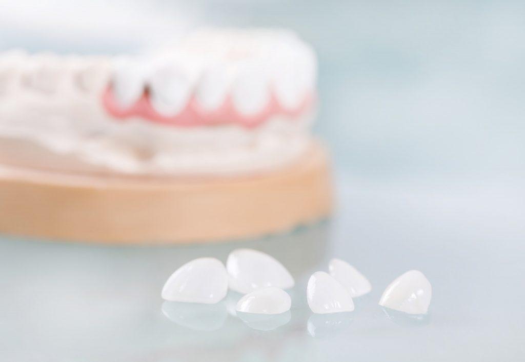 chăm sóc răng miệng - dán sứ veneer