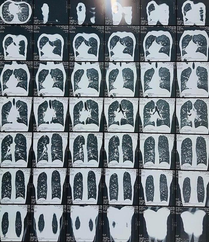 Phát hiện nam thanh niên mắc hội chứng di truyền hiếm gặp, khiến vị trí phủ tạng bị đảo lộn