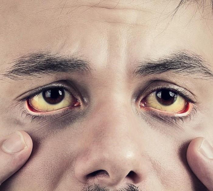 10 thay đổi nhỏ trên cơ thể đang 'báo động đỏ' vấn đề sức khỏe