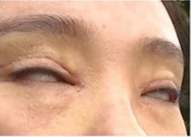 Chi hơn 40 triệu đi cắt mí, người phụ nữ gặp biến chứng khiến mắt không nhắm nổi - Ảnh 3.