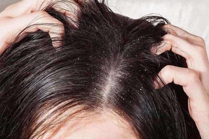 Da đầu khô tróc vảy: Nguyên nhân và cách điều trị giúp da đầu luôn khỏe mạnh
