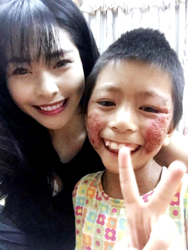 Cô gái Hà Nội nhận nuôi bé gái không ai dám đến gần - Ảnh 1.