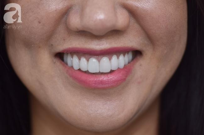 Ham bọc răng sứ giá rẻ, nữ Việt kiều suýt lãnh hậu quả nặng nề: Bác sĩ cảnh báo coi chừng 'tiền mất, tật mang' - Ảnh 2.