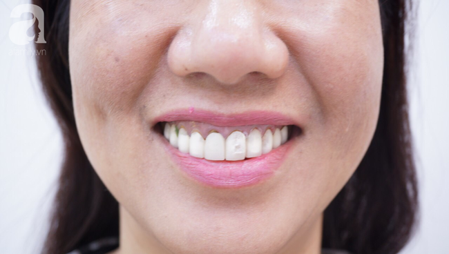 Ham bọc răng sứ giá rẻ, nữ Việt kiều suýt lãnh hậu quả nặng nề: Bác sĩ cảnh báo coi chừng 'tiền mất, tật mang' - Ảnh 1.