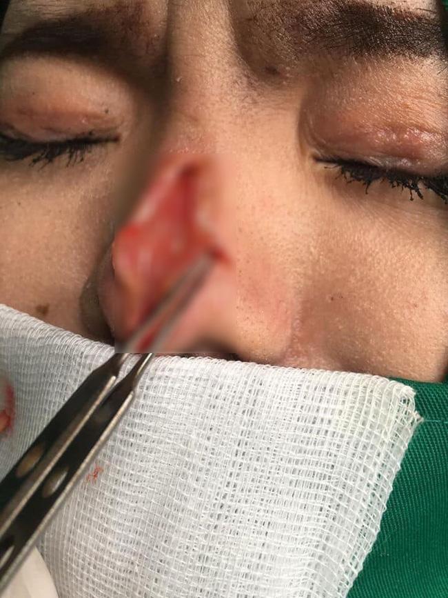 Cận cảnh hình ảnh nâng mũi hỏng của cô gái trẻ khiến nhiều người sợ co rúm! - Ảnh 3.