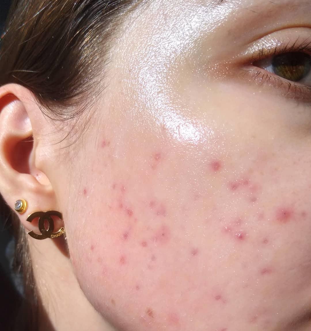 Bác sĩ da liễu chỉ đích danh lỗi sai skin care sơ đẳng mà chị em nào cũng mắc phải khi mùa Thu đến - Ảnh 1.