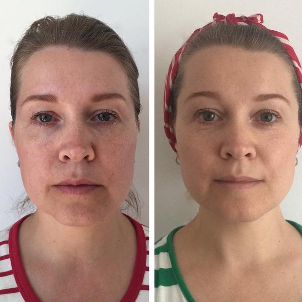 Chị em thi nhau tập yoga cho mặt, liệu pháp nghe lạ tai nhưng ai áp dụng cũng có hiệu quả như tiêm filler, botox - Ảnh 3.