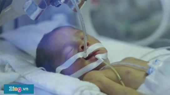 Cuộc đấu tranh sinh tồn của những em bé sinh non