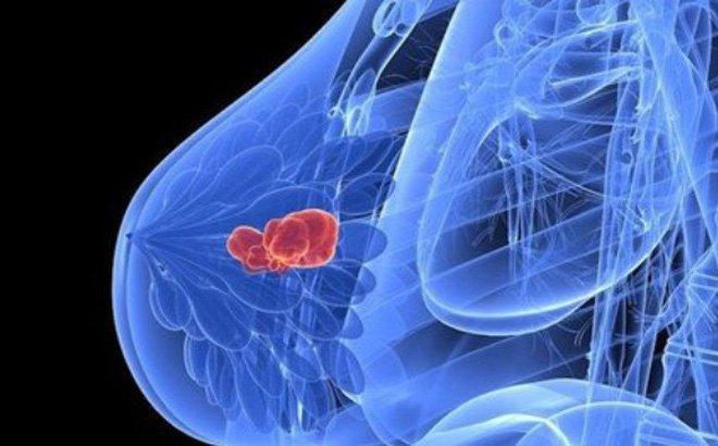 80% ung thư ung thư vú liên quan trực tiếp với môi trường sống
