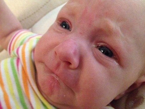 Kết quả hình ảnh cho trẻ sơ sinh bị đau mắt