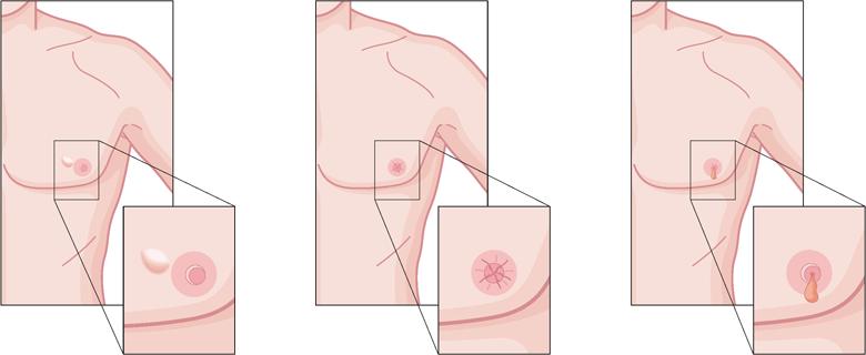 Dấu vết của ung thư vú trên cơ thể đàn ông cần chú ý
