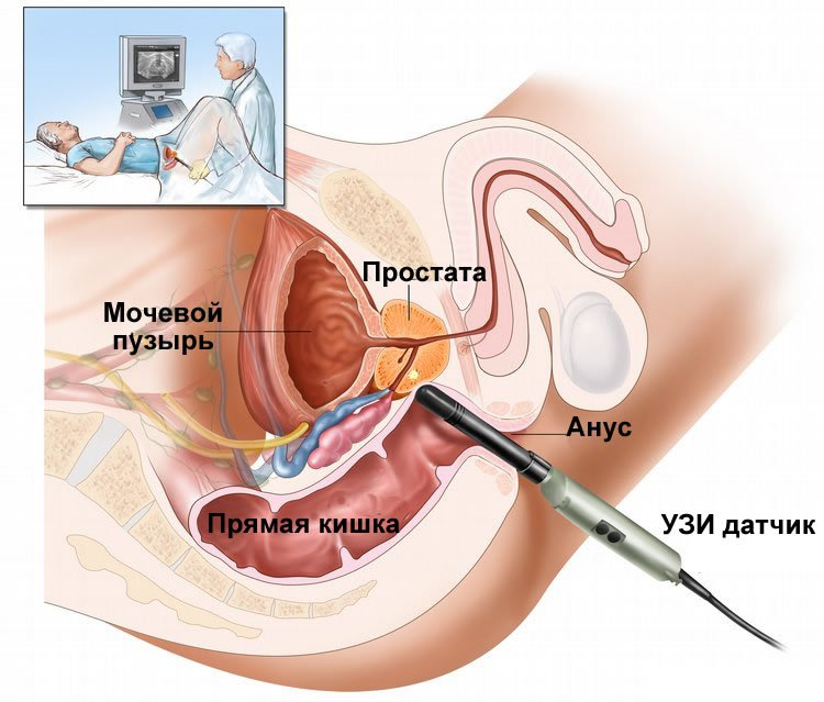 Ung thư tuyến tiền liệt giai đoạn di căn xương