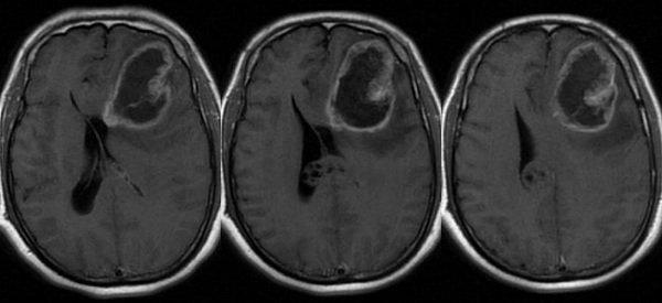U nguyên bào thần kinh ở người lớn