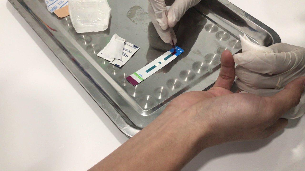 Đi làm xét nghiệm HIV có cần nhịn ăn không?