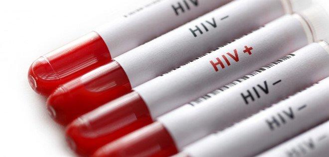 Triệu chứng từ cơ quan sinh dục bạn nên làm xét nghiệm HIV ngay