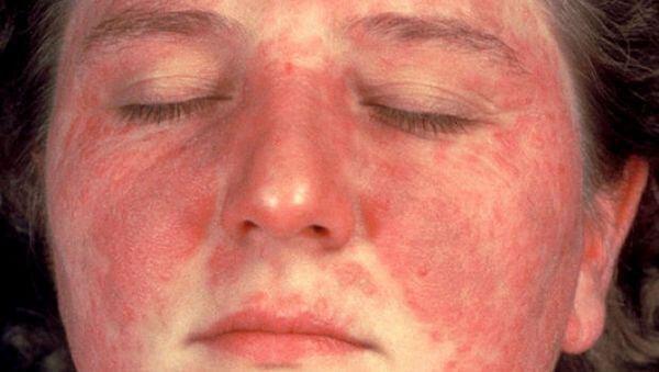 Lupus ban đỏ hệ thống sống được bao lâu?
