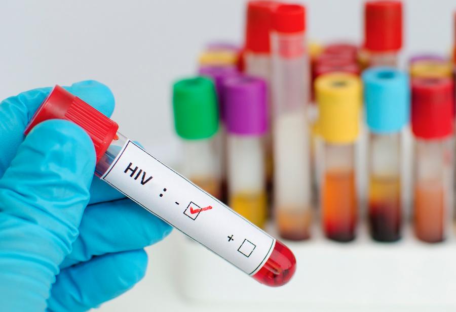Sau khi làm xét nghiệm HIV, tôi nhận kết quả qua zalo có được không?