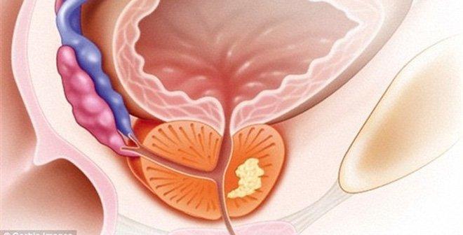 Triệu chứng thường gặp của bệnh ung thư tuyến tiền liệt