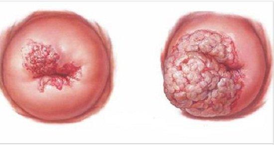 6 bệnh ung thư phổ biến, những dấu hiệu nhận biết cực kỳ quan trọng
