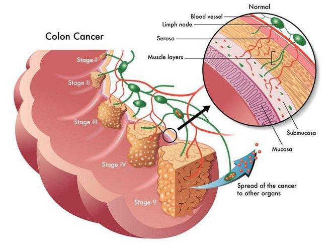95% ca ung thư đại tràng liên quan đến nguyên nhân này, làm sao để phòng bệnh đúng cách?