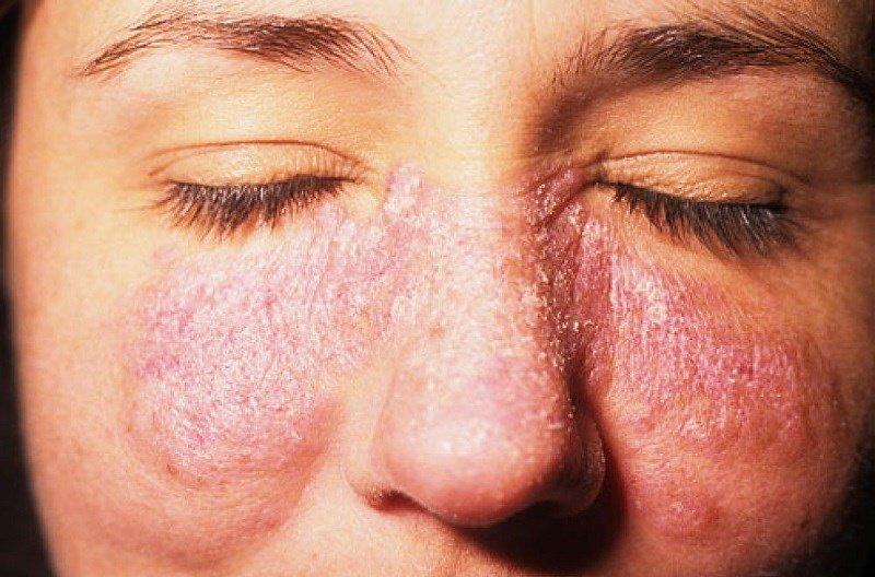 Bệnh Lupus ban đỏ hệ thống không thể coi thường