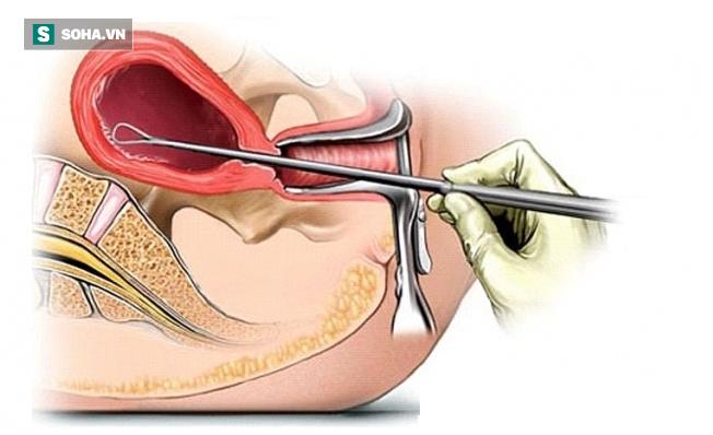 Tắc kinh và đau bụng kèm ra máu: BS sản khoa cảnh báo nguy cơ khiến chị em vô sinh