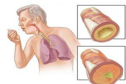 Chẩn đoán lao phổi qua các xét nghiệm
