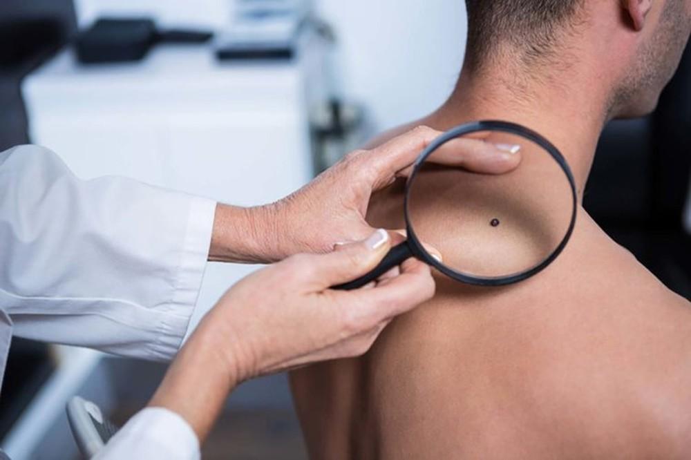 Đây là những triệu chứng cảnh báo ung thư sớm mà con trai không nên chủ quan bỏ qua