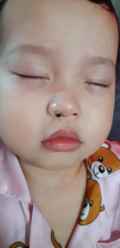 Con ngạt mũi mãi không khỏi, mẹ Sài Gòn kinh hãi khi thấy dị vật này liên tiếp chui ra từ mũi con