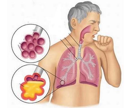 Bài thuốc trị bệnh đường hô hấp