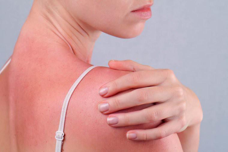 Ngộ độc ánh nắng mặt trời - tình trạng nguy hiểm cần được nhận biết ngay