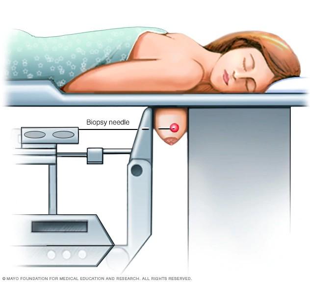 Bác sĩ Việt tại Úc giải đáp những điều chị em cần biết về sinh thiết vú - phương pháp để biết là khối u lành hay ung thư