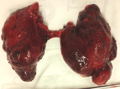 Hai chị em sinh đôi cùng mắc 1 bệnh ung thư: Bác sĩ chỉ ra dấu hiệu cần nhớ